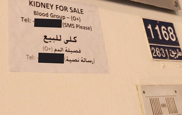 Kidneys are on sale for BD15,000!