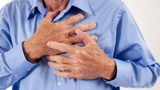 First Aid: What to do when someone is having a heart attack