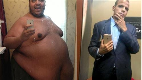 Inspirational: Man loses 400 pounds, now raising money to remove excess skin