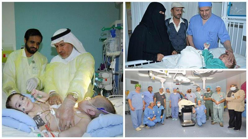 ksa yemeni siamese conjoined twins successfully separated leave hospital