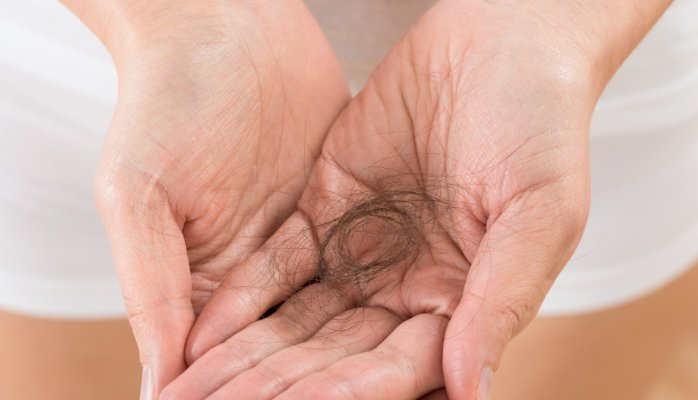 Health: Four common causes of hair loss