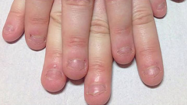 Health: Biting your Nails: Just a bad habit or harmful to your health?