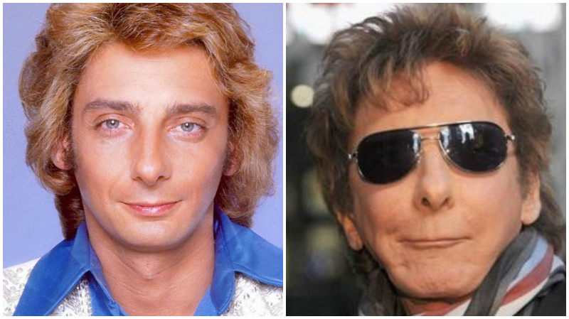 Celebs: 20 Celebs who lost themselves to plastic surgery