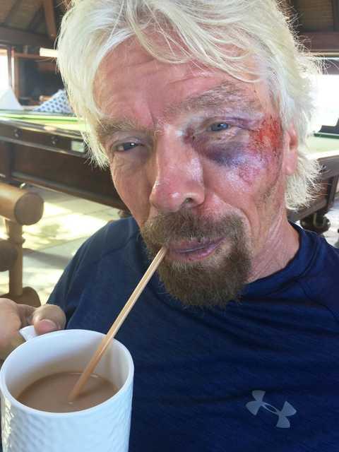 Richard Branson survives bike crash