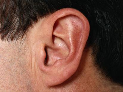 Guam man denies biting off cousin's ear