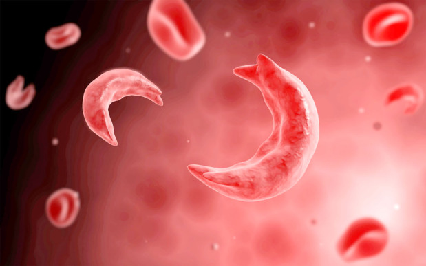 Sharp fall in sickle cell deaths in Bahrain