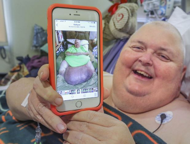 OMG: US: Doctor removes 130-pound tumor from a man who was told he was 'just fat'