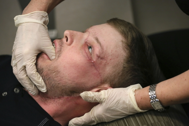 OMG: Twin tragedies give survivor a new face