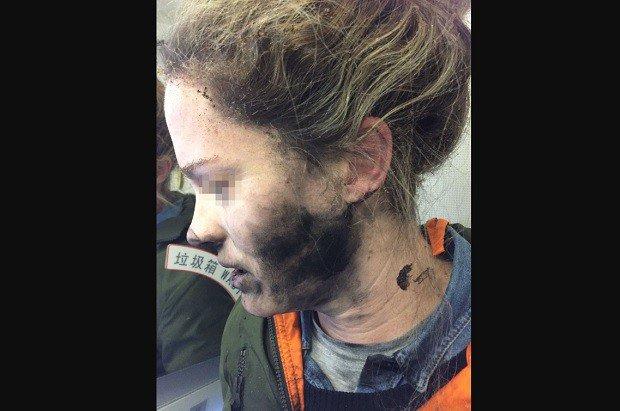 Woman suffers burns as headphone batteries explode on flight