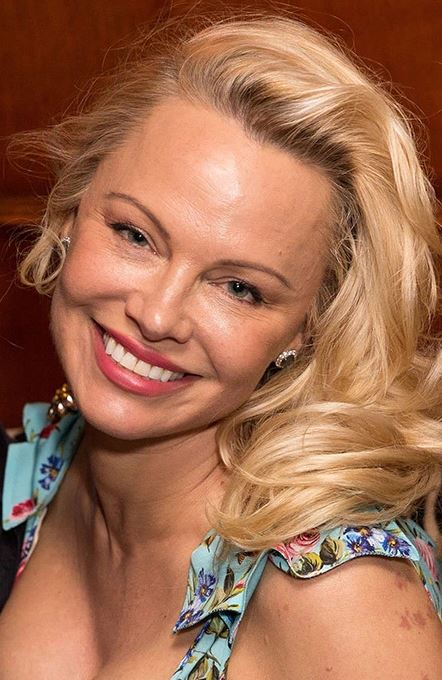 celebs did pamela anderson get plastic surgery done