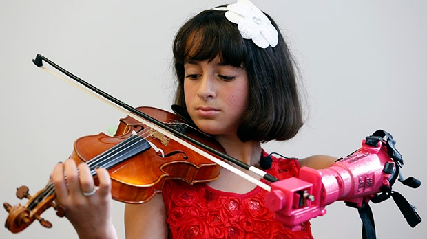 In Pictures: Undergrads build prosthetic arm for 10-year-old violinist