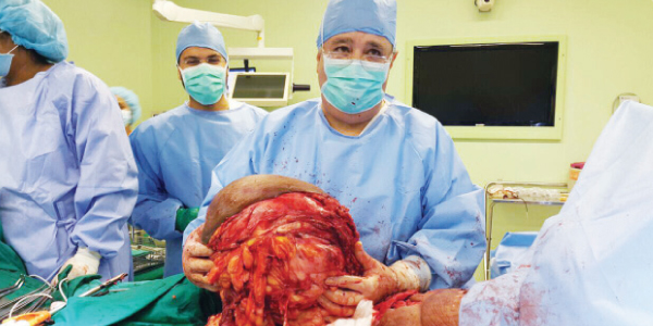 18kg tumour removed from Kuwaiti woman's thigh