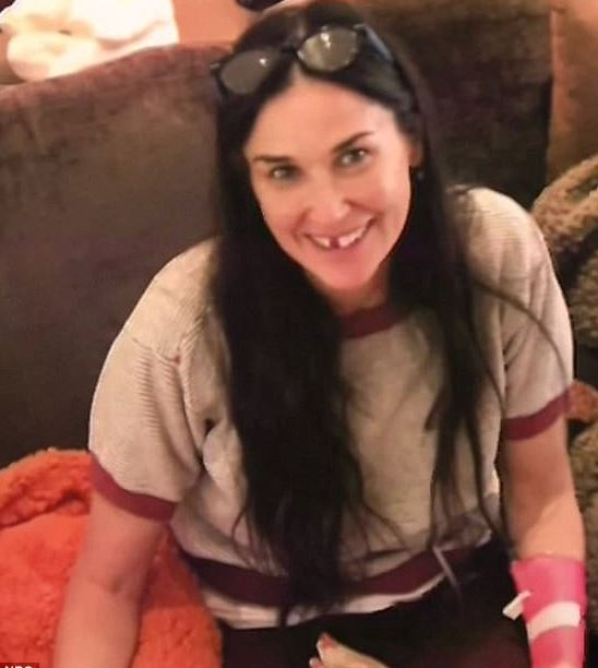 Demi Moore says her teeth fell out due to stress