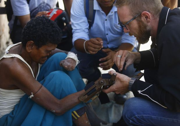 PHOTOS: Cheap 3D printed prosthetics could be game changer for Nepal