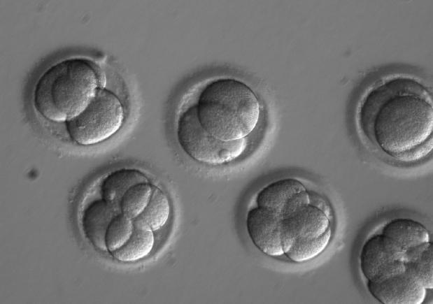 Disease gene 'edited' in human embryos in scientific first
