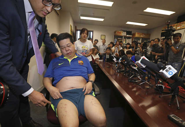 Hong Kong activist arrested over allegation of stapled legs