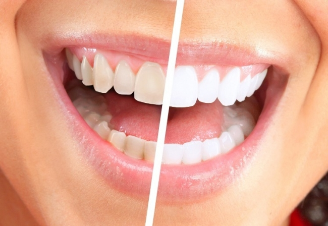 Six home remedies to naturally WHITEN your teeth