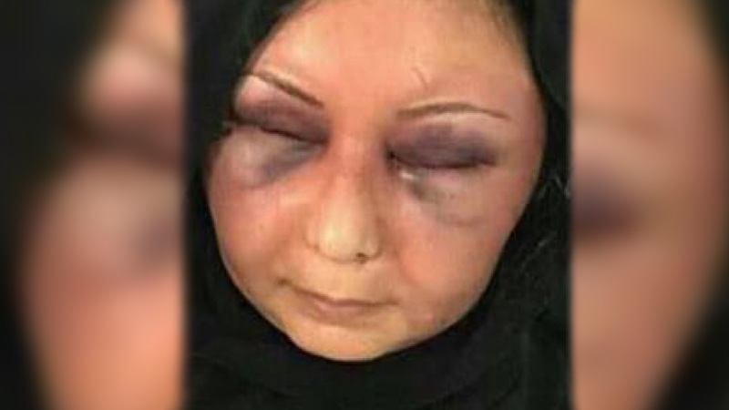 Bahraini man charged with brutal assault of former wife