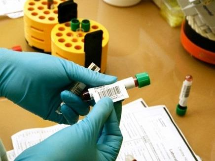 HIV testing a must for expatriates from 10 countries