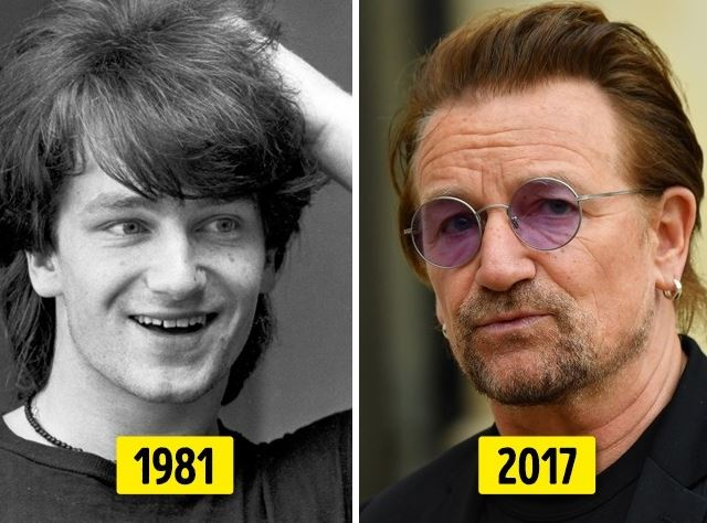PHOTOS: 10 celebrities who've changed beyond recognition