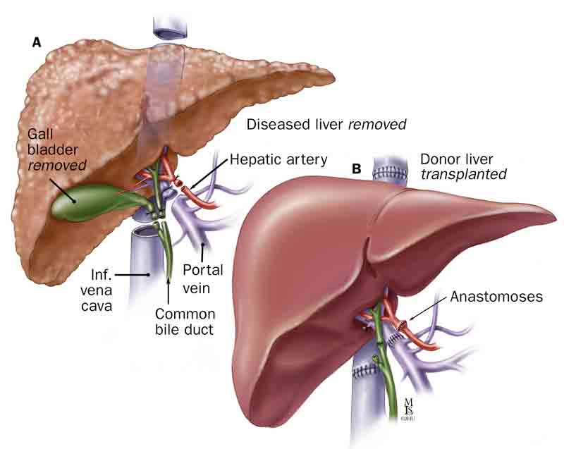 Liver transplant centre on the way in Kuwait