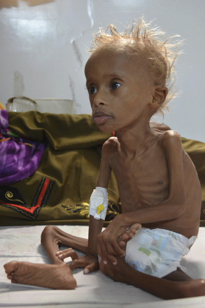 Aid group says 130 children die every day in Yemen