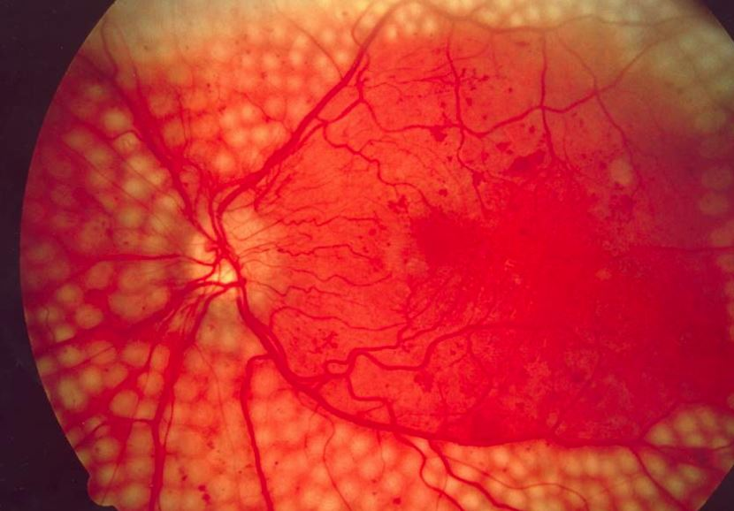 Diabetics with related eye damage have increased falling risk