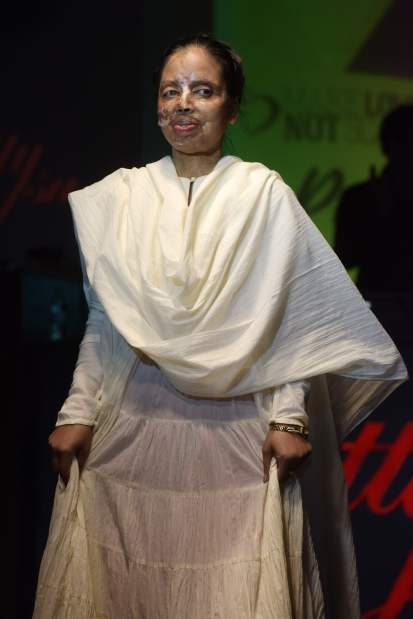 OMG: In Pictures: India acid attack victims defiant on the haute couture catwalk