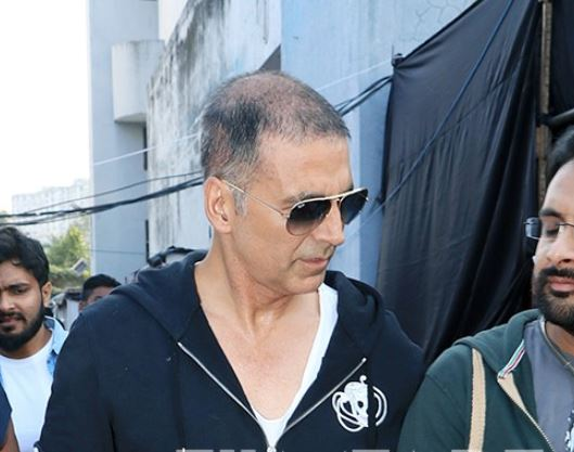 Bald and proud: Akshay Kumar is losing hair but refuses to hide it