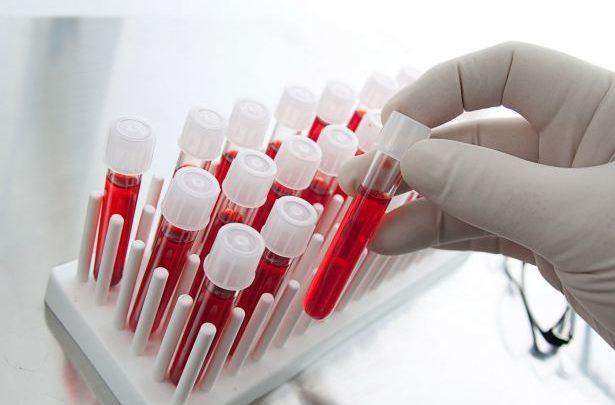 Gang arrested over blood test scam