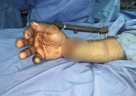 Doctors reattach severed hand of expat after six-hour-long operation