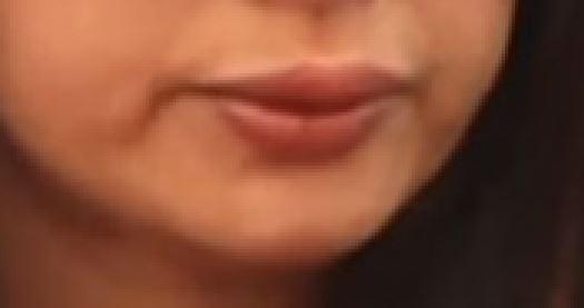 Botched lip job makes this Bollywood actor smile