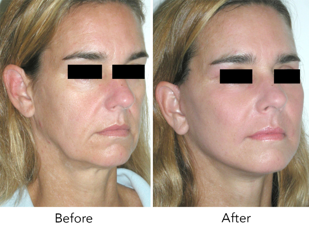 Clinic offers best anti-ageing solutions