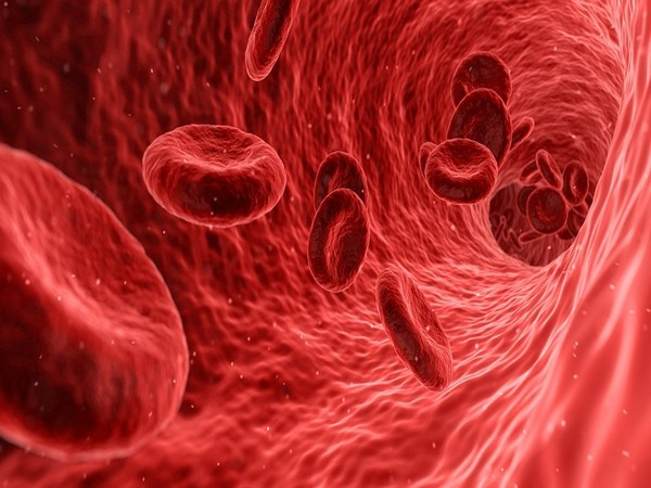 Are sepsis patients at higher risk of stroke?