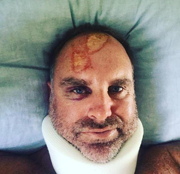 Australia's Hayden fractures neck in surfing accident