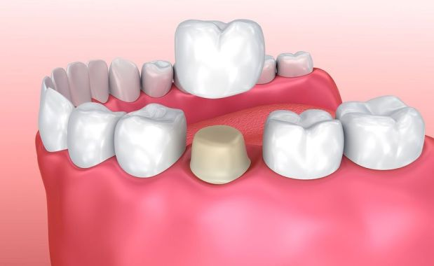 Dental crown after root canal treatment – how important is it?