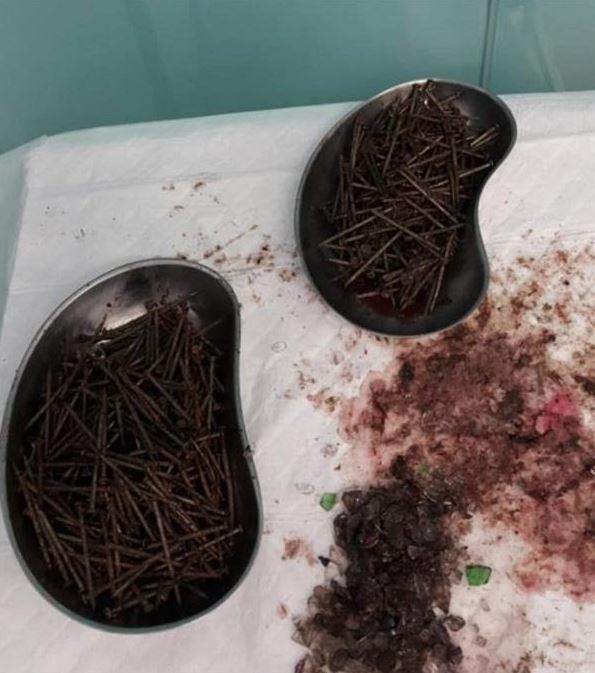 Doctors in Jeddah remove nails and glass from patient's stomach