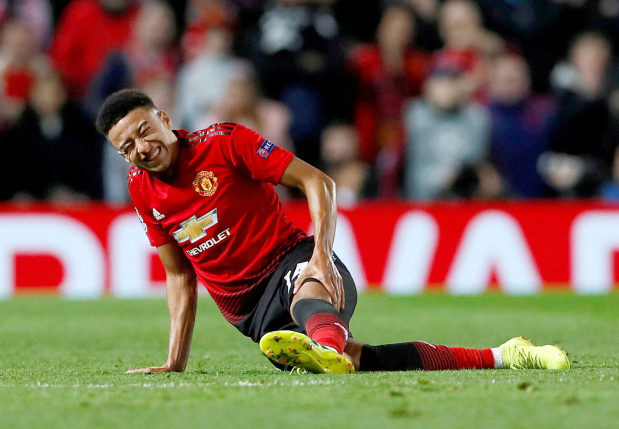 Injury blows for United